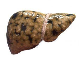 Hígado-graso www.tucaminodelbienestar.com
