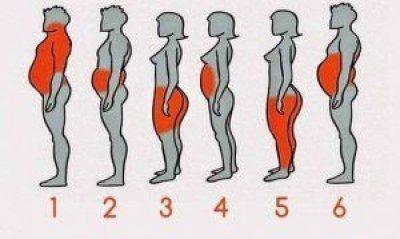 Tengo sobrepeso grado 1